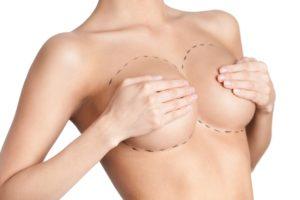 Behandlungsmethoden Brust